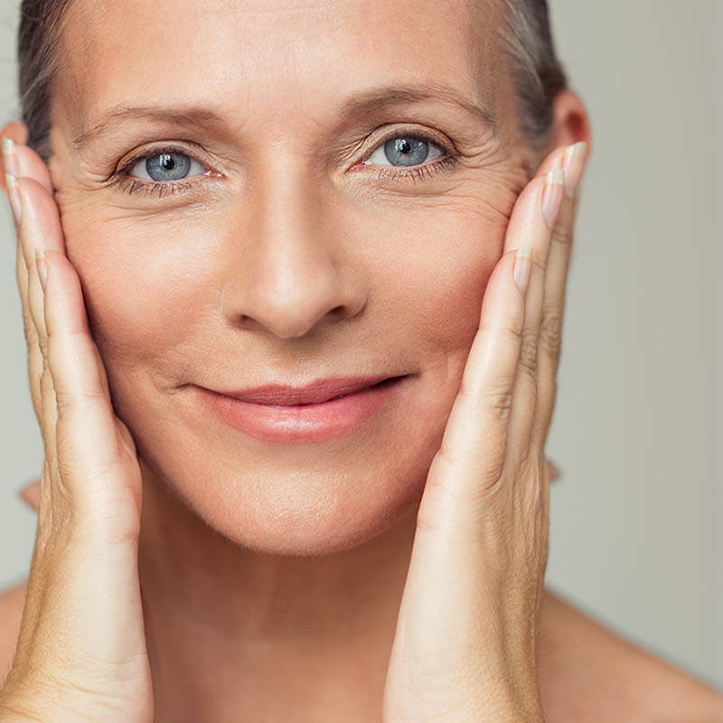 facelift fillers