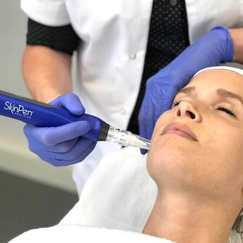microneedling behandeling
