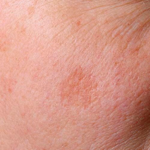 huidveroudering huidindicatie