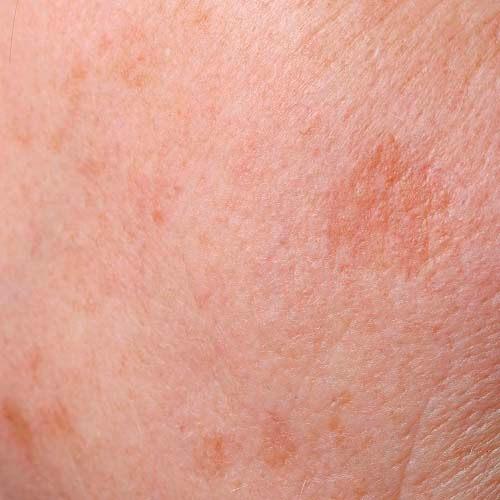 pigmentatie huidindicatie